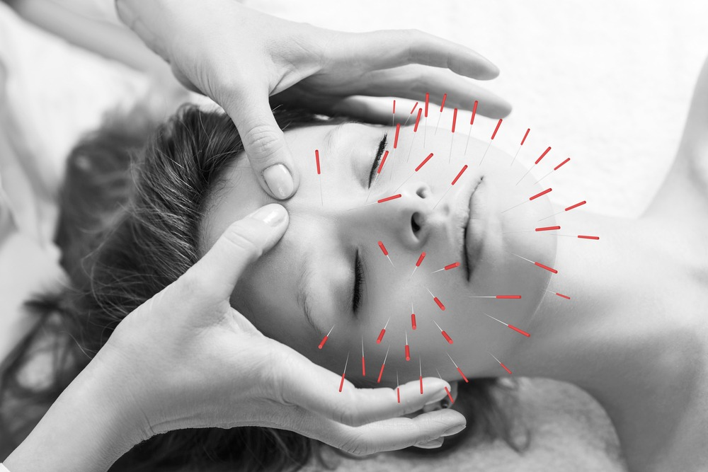 Can Acupuncture Help with Migraines?